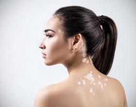 dermatologos en cancun vitiligo dermatologia dermatologos cancun medico de la piel mal del pinto paños