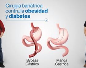 manga gastrico by pass gastrico directorio medico de cancun diabetes sobrepeso sergio verboonen mini bypass banda gastrica